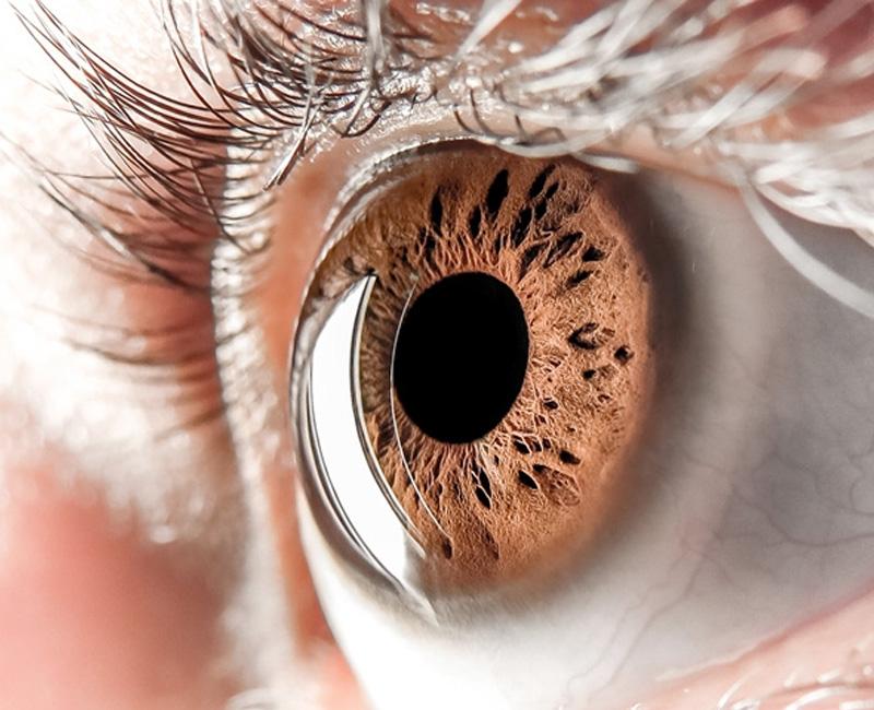 Você conhece o seu olho? 2