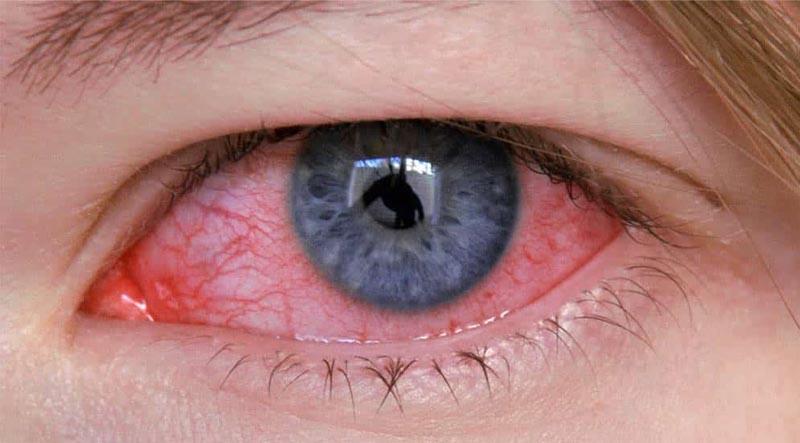 Olhos vermelhos, o que pode ser? 2